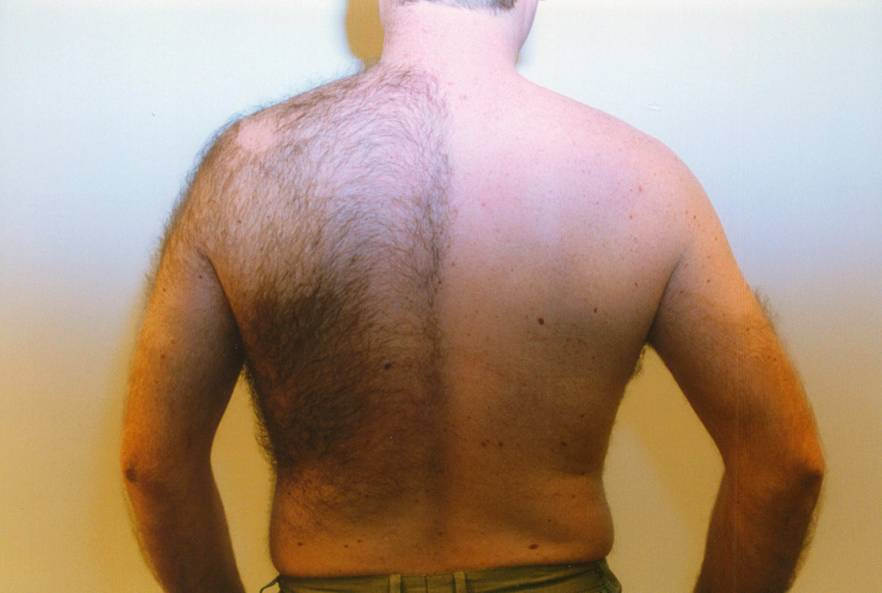 Hair Removal, Men's Hair Removal, Back and Chest, Blue Sage Spa, Breckenridge, CO
