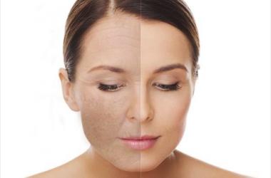 Skin resurfacing, Ellipse IPL, Blue Sage Spa